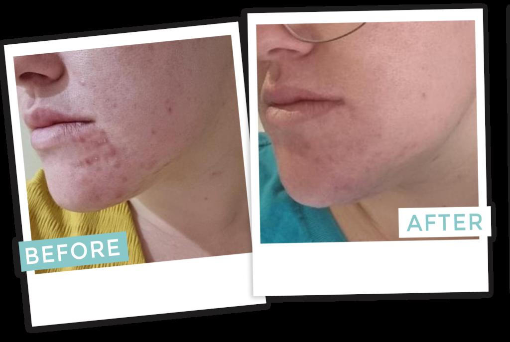 Vegan Skincare Australia   Does Natural skincare work 1