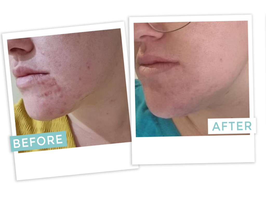 before after1 | Skincare Brisbane