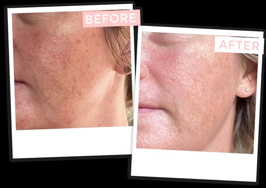 Vegan Skincare Australia   Does Natural skincare work 2